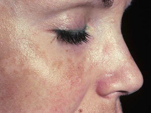 средства от пигментации кожи