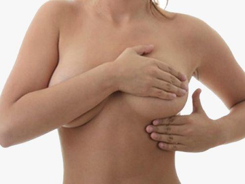 Вертикальная мастопексия фото до и после
