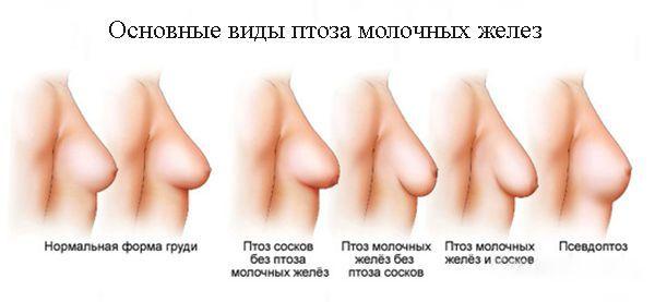 vid-soskov-grudi-foto-porno-firuza-bikeeva